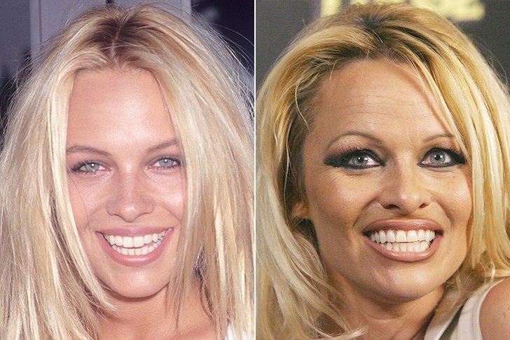 heinous celebrity plastic surgery fails page 2 of 28 telehealth dave