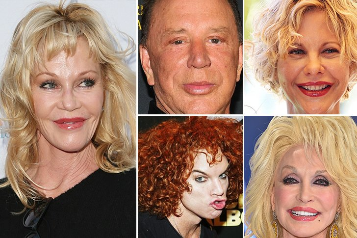 25 Heinous Celebrity Plastic Surgery Fails: Cosmetic ...
