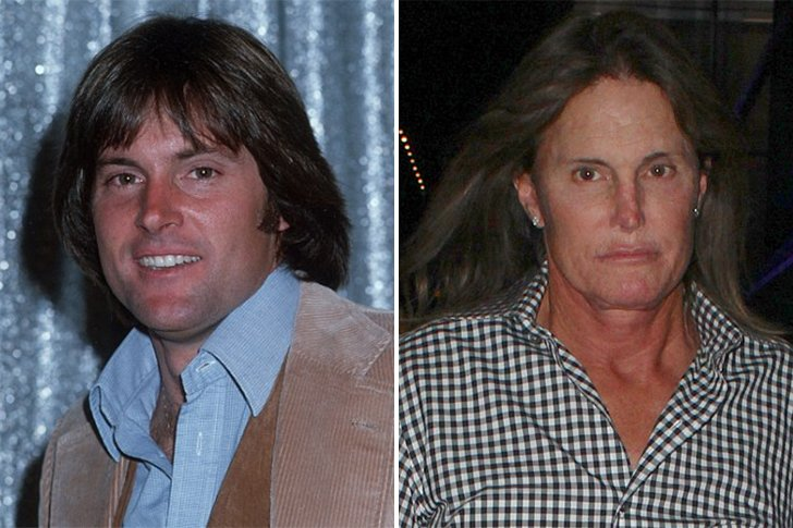 Changement de sexe de Bruce Jenner