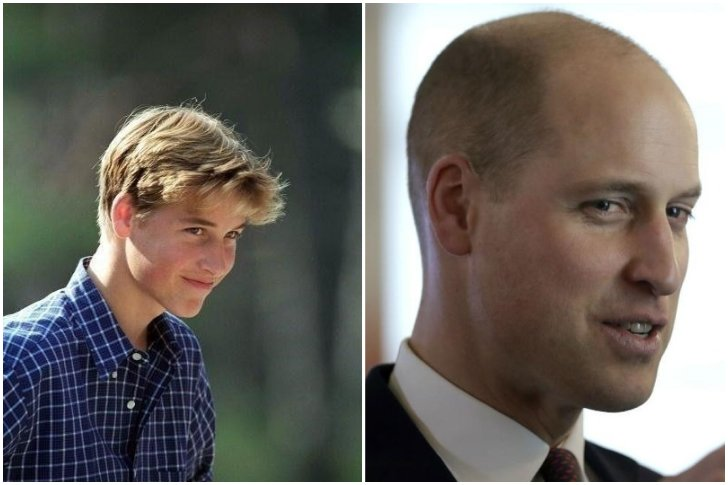 Prince William calvitie